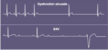 bloc droit cardiaque